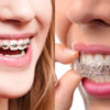 Why choose ODS Aligners over the braces?